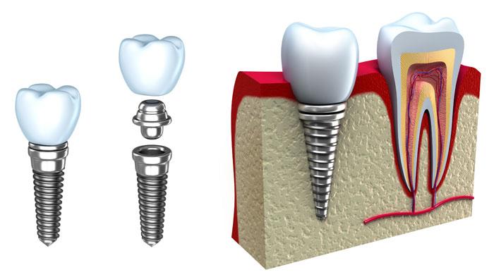 DentalImplant Full View