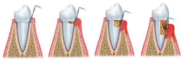 Pocket Reduction Procedures