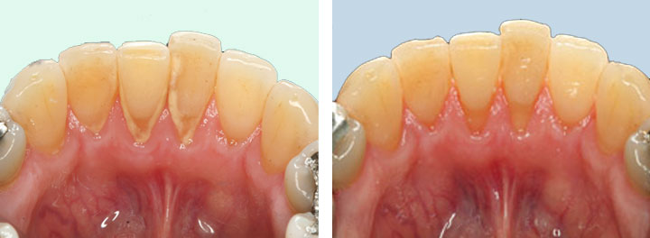 Deep Cleaning of Teeth