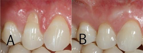 Periodontial Plastic Surgery